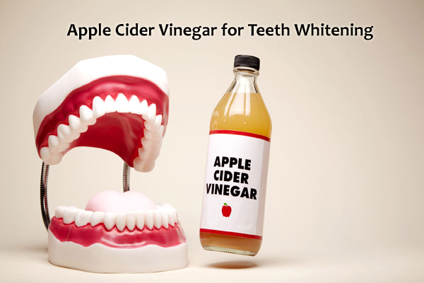 ACV teeth whitening