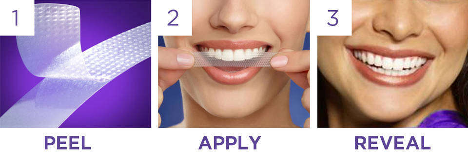 How to use whitening strips