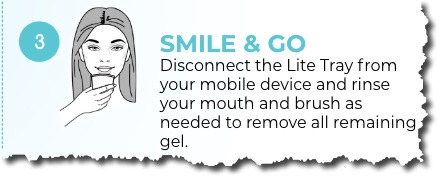 Using Mobile White Advanced Teeth Whitening Kit Step 3