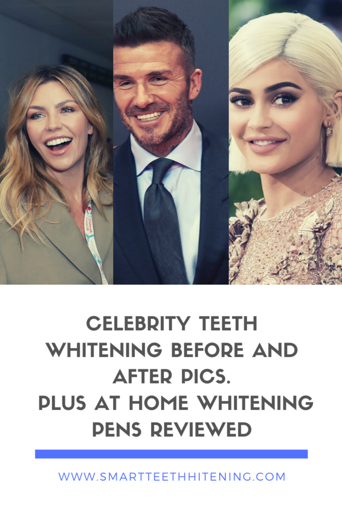 Celebrity Before and After Teeth Whitening